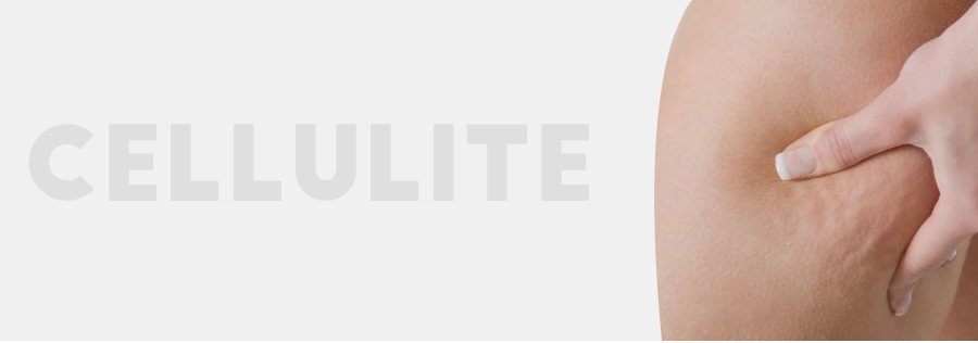 cellulite-ayurveda